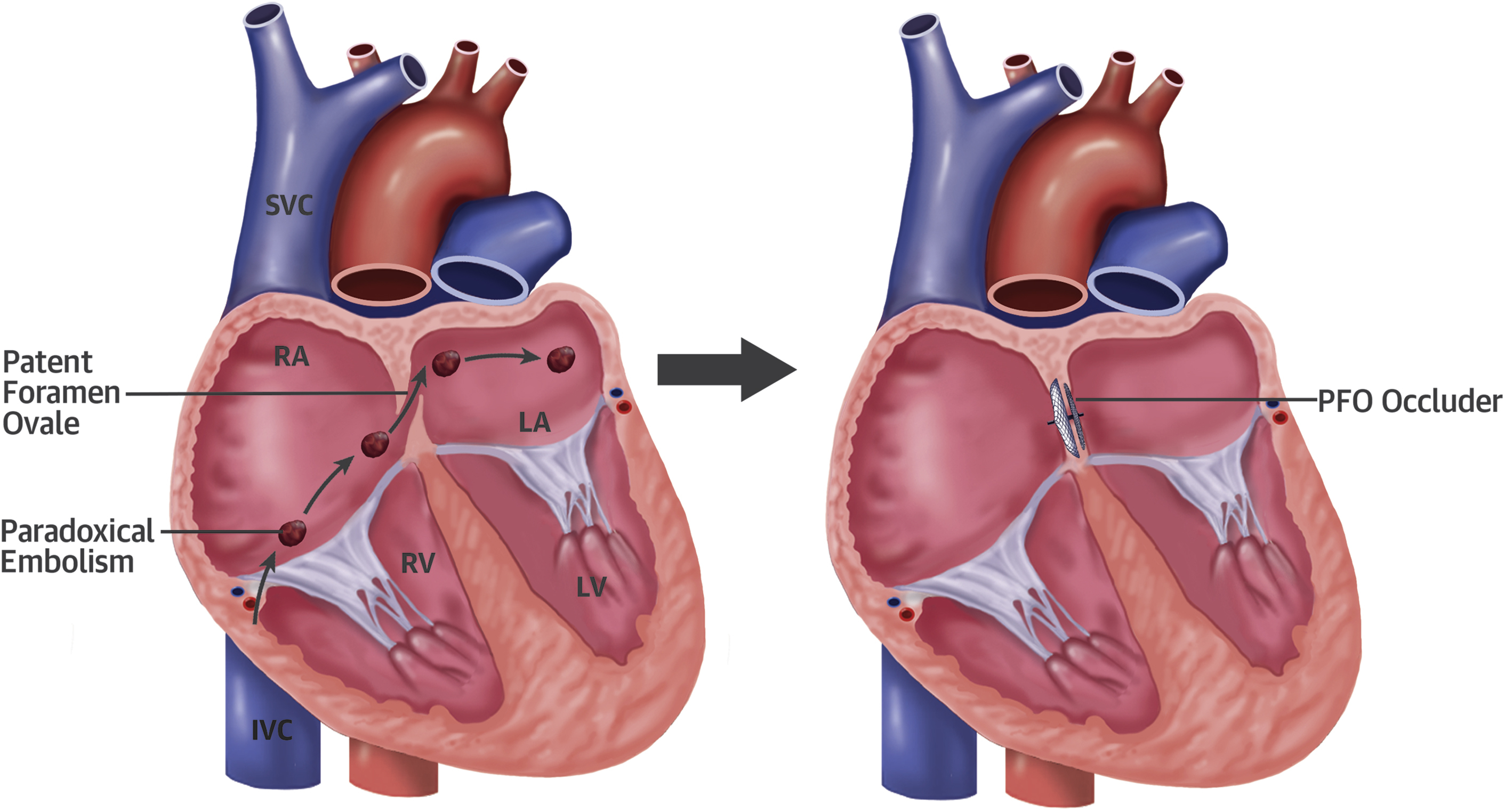 Device Closure of Patent Foramen Ovale in Patients With ...